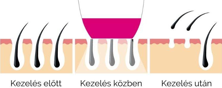 forever-skin-ipl-szortelenito-ipl-technologia